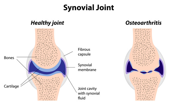 healthy joint vs osteoarthritis diagram