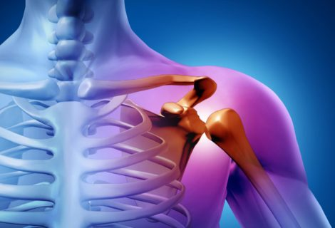 Shoulder impingement explained
