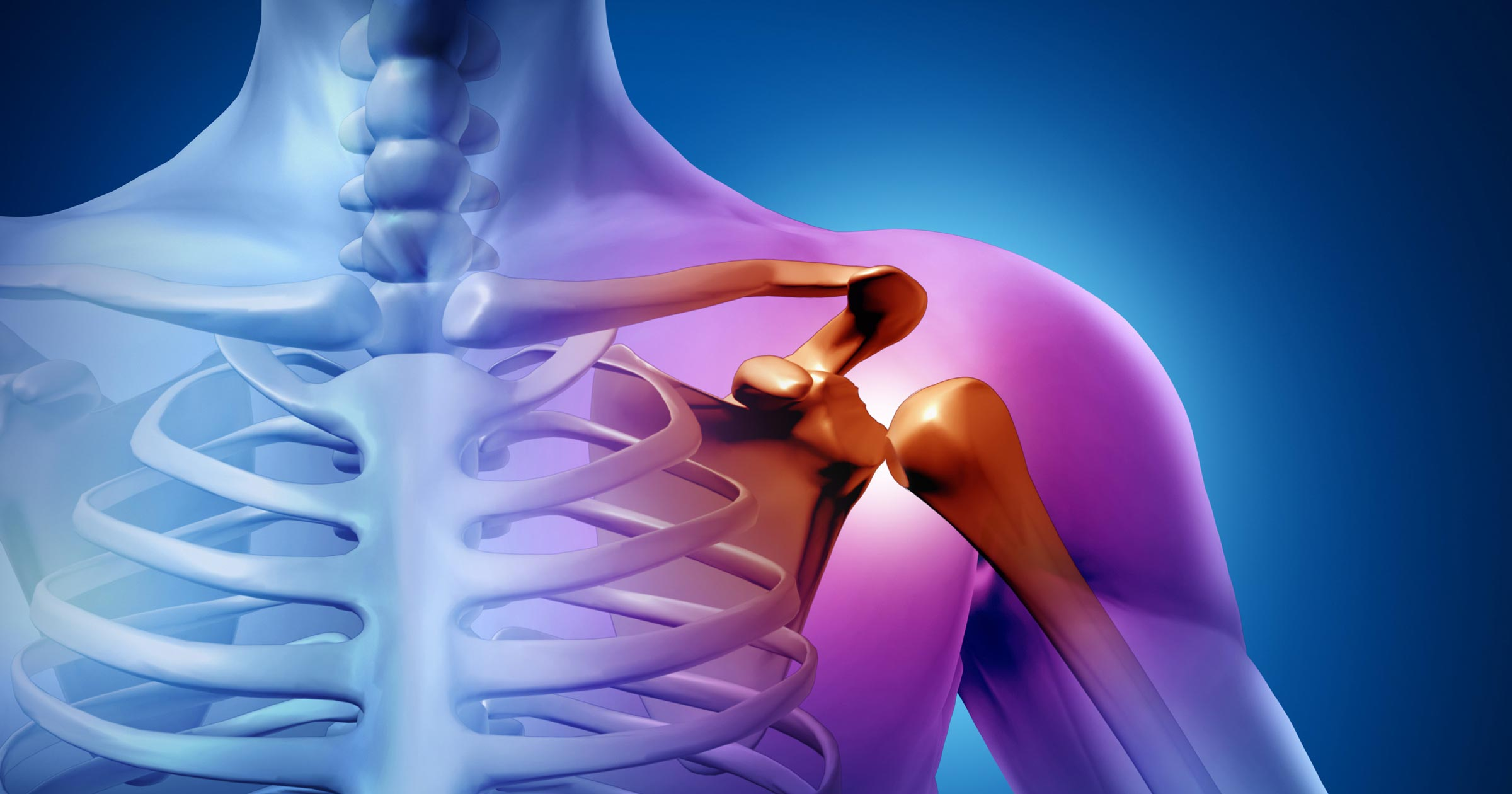 Shoulder impingement explained