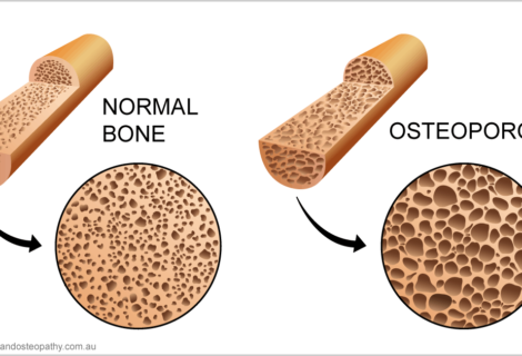 Prevention and management of Osteoporosis