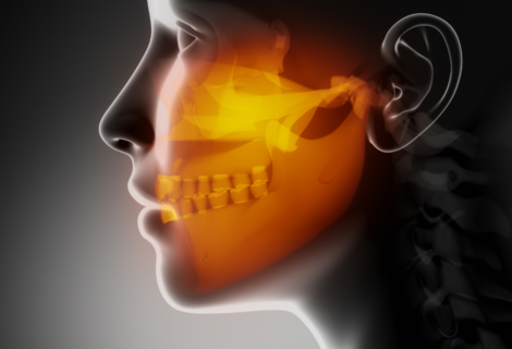 Temporomandibular joint disorder is no laughing matter!